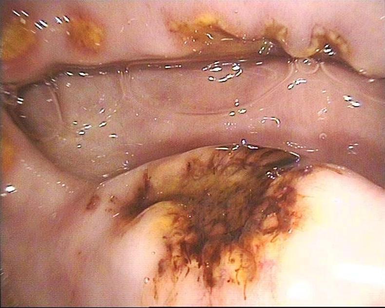 HORSE SENSE: Understanding more Equine Gastric Ulcer Syndrome