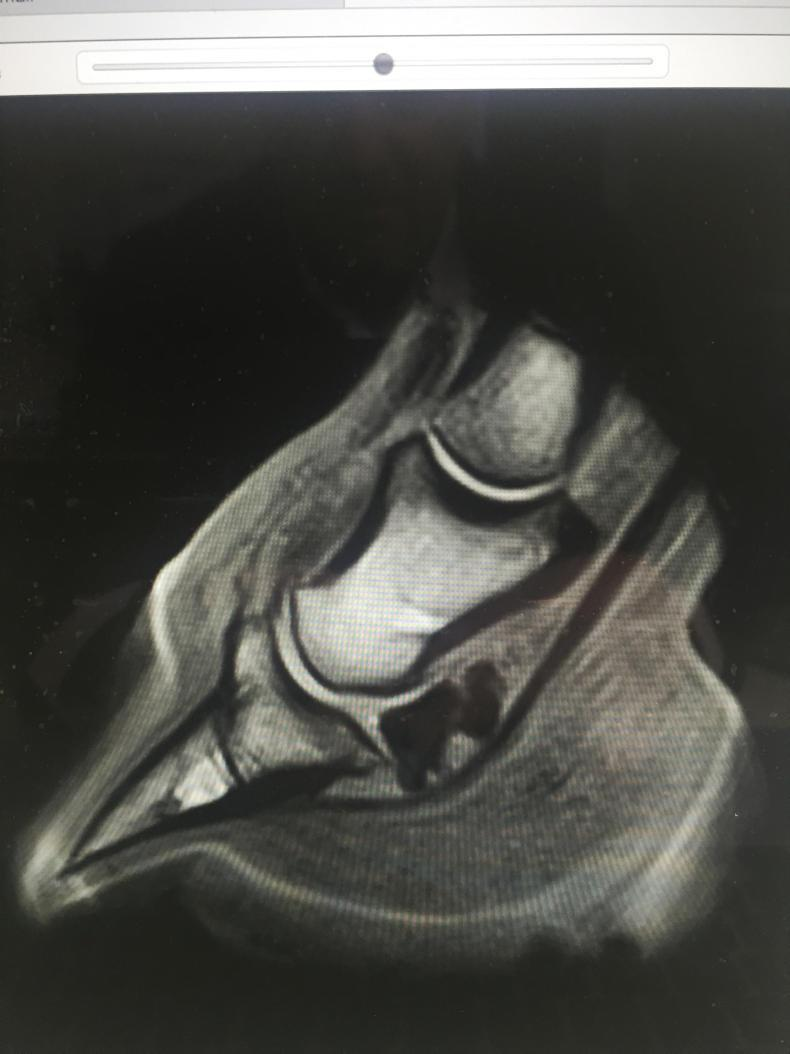 HORSE SENSE HOOFCARE:  MRI- a definitive diagnosis